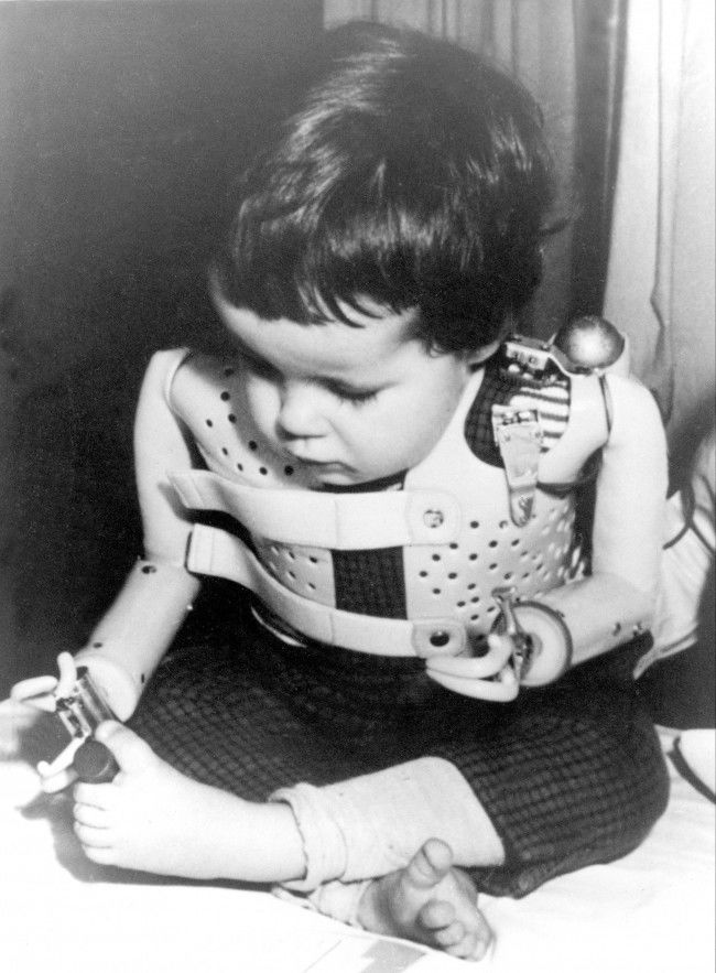 A three-year-old girl, born without arms to a German mother who took the drug thalidomide, uses power-driven artificial arms fitted to her by Dr. Ernst Marquardt of the University of Heidelberg in Germany, 1965. The child activates the artificial arms by moving her shoulders.  Date: 01/01/1965