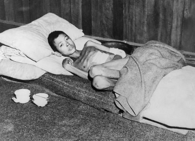 A 12 year old Burmese boy, Aung Thei was beaten by Japanese with shovels and rifle butts suffered 4, bayonet wounds, Feb. 26, 1945. He was buried alive in a shallow grave but he managed to crawl out. He made his way to a Basha where he was found by a patrol of the Royal Scots Fusiliers, 36th division. The lad of being treated by the Field Ambulance Company. In addition to multiple bayonet wounds in the chest, back and a below he is suffering from dysentery and malaria, is recovery is expected.