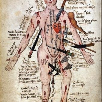 1492: Wound Man Was The Luckiest Man Alive In The Middle Ages