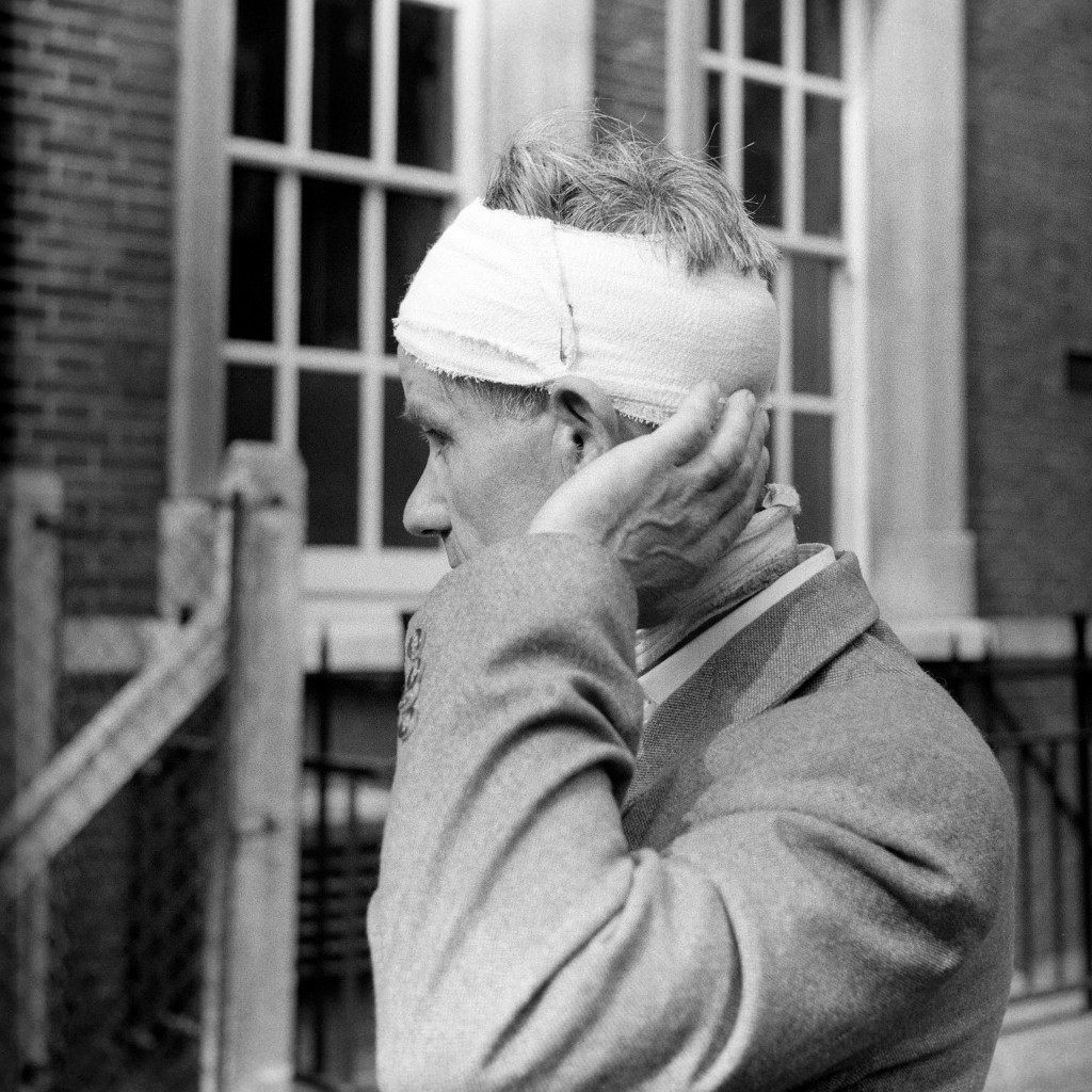 A man shows how he was injured during the race riots in Notting Hill Gate. Ref #: PA.5969188  Date: 02/09/1958