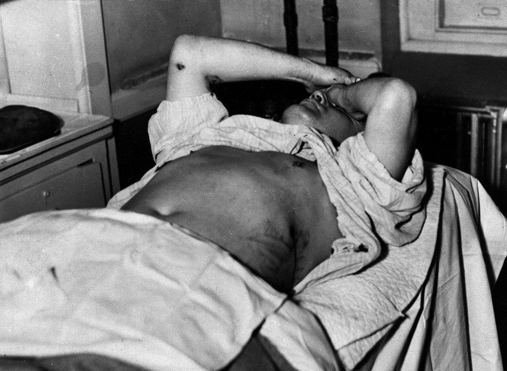 Mobster Dutch Schultz holds his head in agony as he lays in his hospital cot, his arm and chest wounds exposed, in Newark, N.J., on Oct. 23, 1935. Schultz and his bodyguards were shot by rival gangsters in a massacre and he died later the same night from his gun shot wounds. He was born Arthur Flegenheimer in Bronx, N.Y., in 1902. (AP Photo) Ref #: PA.4097802 Date: 23/10/1935