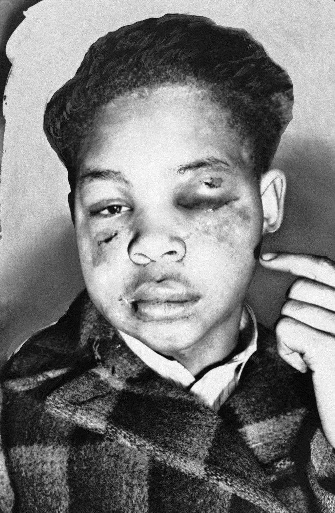 Lamar Howard, 19, of Monroe, Ga., points to bruises he said he received in Atlanta from two white men, Jan. 2, 1947. Howard said they tried to force from him his testimony before a federal grand jury investigation the lynching of four blacks near Monroe last summer. (AP Photo)