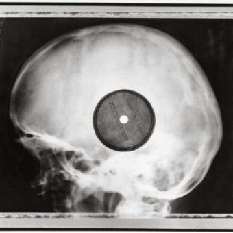 Rib and Bones: When Soviet X-rays became bootleg records of forbidden Western music