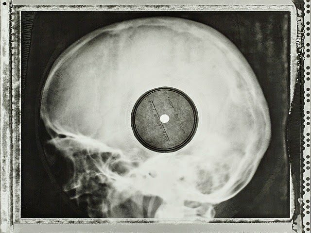 Rib And Bones When Soviet X Rays Became Bootleg Records
