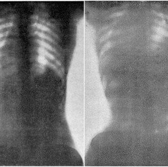 Doctor O'Followell's X-rays of women wearing corsets: 1908