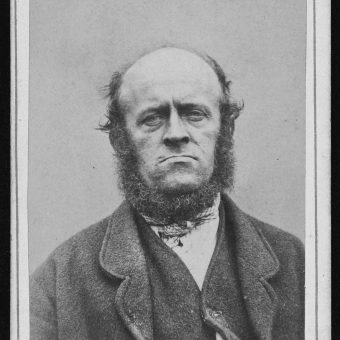 Haunting Portraits of Inmates at West Riding Pauper Lunatic Asylum, in Yorkshire, England 1869