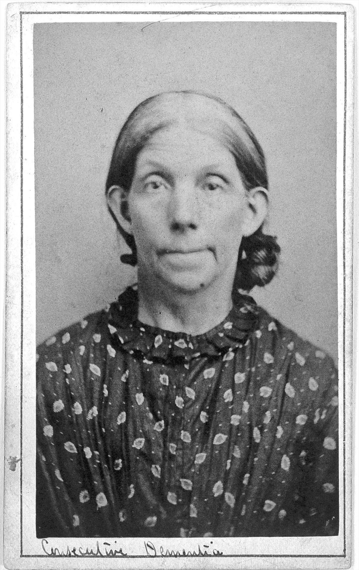 """Portraits from a """"lunatic asylum"""" Inmates at West Riding Asylum, in Yorkshire, England"""