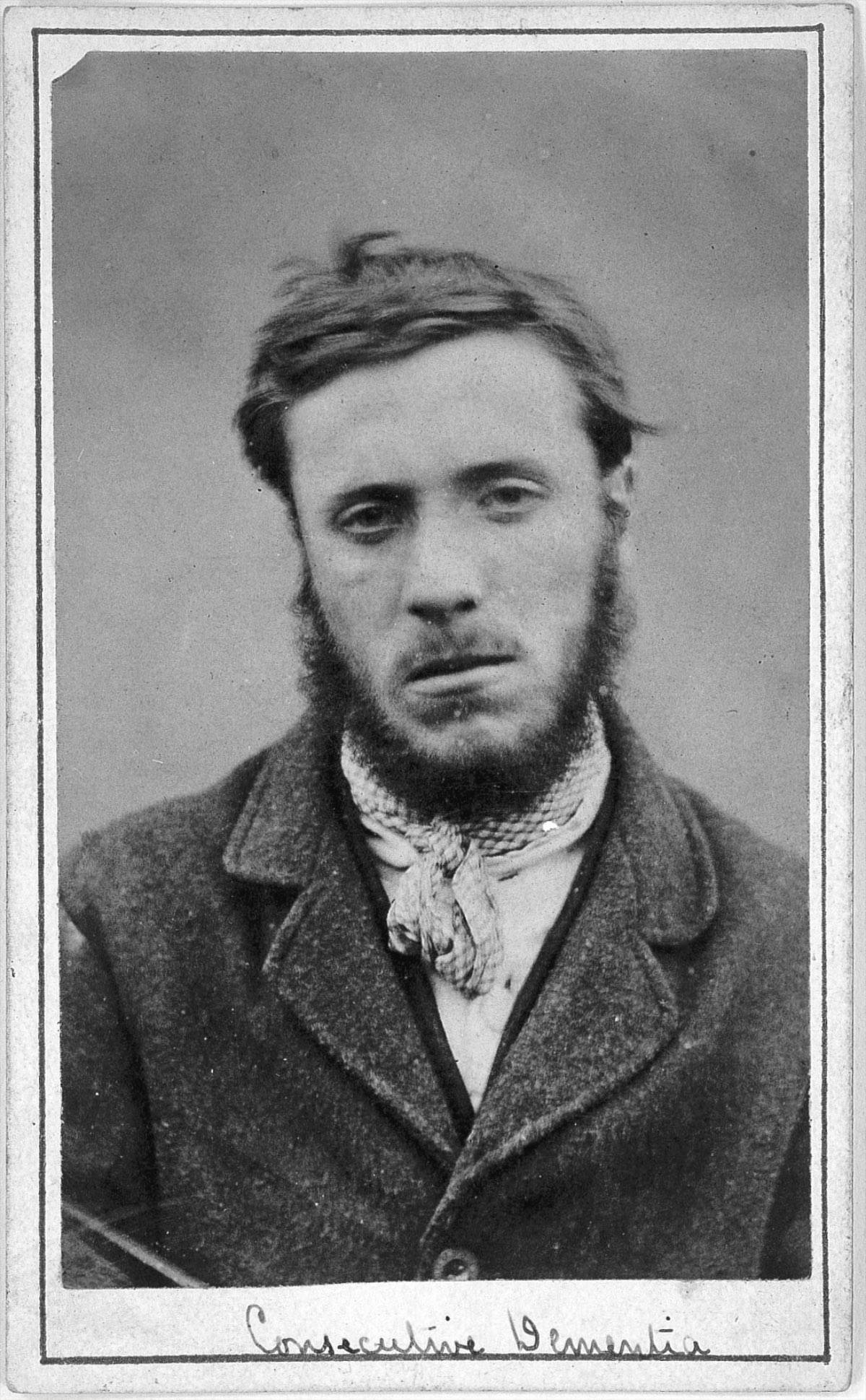 "Portraits from a ""lunatic asylum"" Inmates at West Riding Asylum, in Yorkshire, England"
