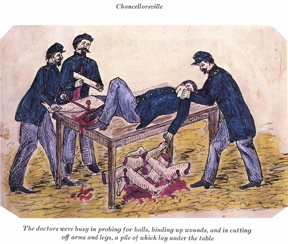 """""""The doctors were busy in probing for balls, binding up wounds, and in cutting off arms and legs, a pile of which lay under the table"""", drawings from the diary of Alfred Bellard, 1860s Courtesy Alec Thomas Archives"""
