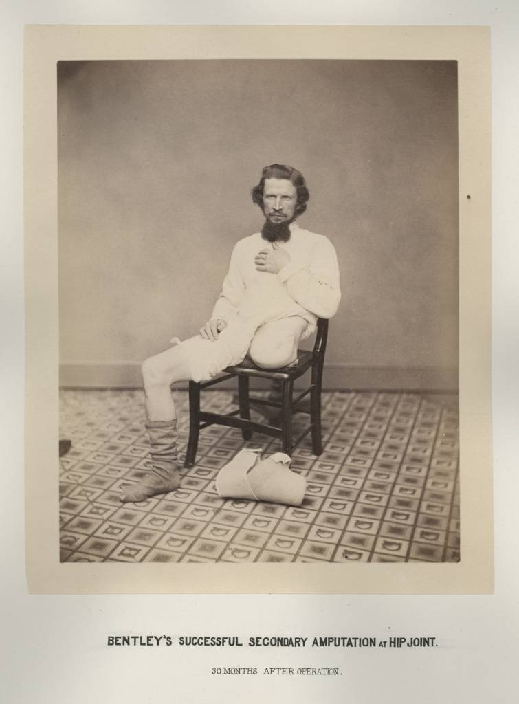 Private George W. Lemon, from George A. Otis, Drawings, Photographs and Lithographs Illustrating the Histories of Seven Survivors of the Operation of Amputation at the Hipjoint, During the War of the Rebellion, Together with Abstracts of these Seven Successful Cases, 1867 Courtesy National Library of Medicine