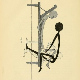 Gynaecology For Women And Other Aliens: Thure Brandt's Digital Gymnastics (1895)