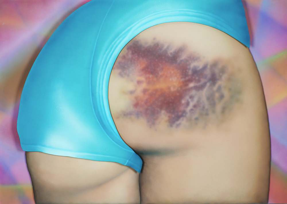 """I Got a Really Beautiful Bruise on My Bum, Do You Want To See a Pic? It Has 12 Colours And Is the Size of My Head!,"" 2015"