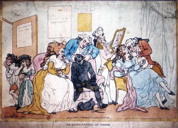 UNITED KINGDOM - JANUARY 19:  Engraving by Thomas Rowlandson (1756-1827) ridiculing the fashion for tooth transplantation from living donors that was in vogue in the late 18th century England. This dubious practice became popular after it was championed by the famous physician, John Hunter. Here Rowlandson, a notable painter and caricaturist of fashionable life shows an unfortunate pauper having a tooth removed for the use of the fashionable lady next to him. The two donors leaving the room are nursing their jaws and examining the payment they have just received.