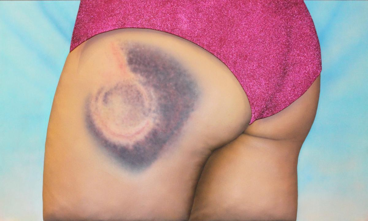 """Violet! You're turning violet, Violet! #derbybruise #ouch #hematoma,"" 2015"