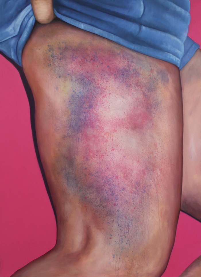"""Wait Long Enough and Someone Will Find a Picture of Jesus in That Bruise!,"" 2014"