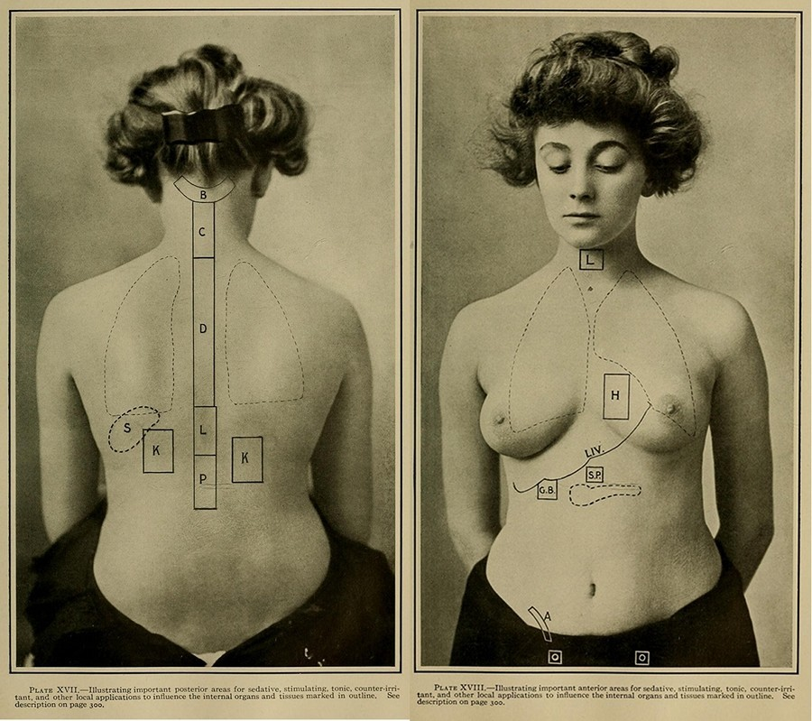 High Frequency Electric Currents in Medicine and Dentistry (1910) 8