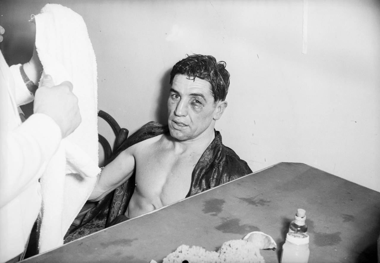 30th January 1952: British flyweight champion Terry Allen nurses a black eye after a fight. (Photo by Express/Express/Getty Images)