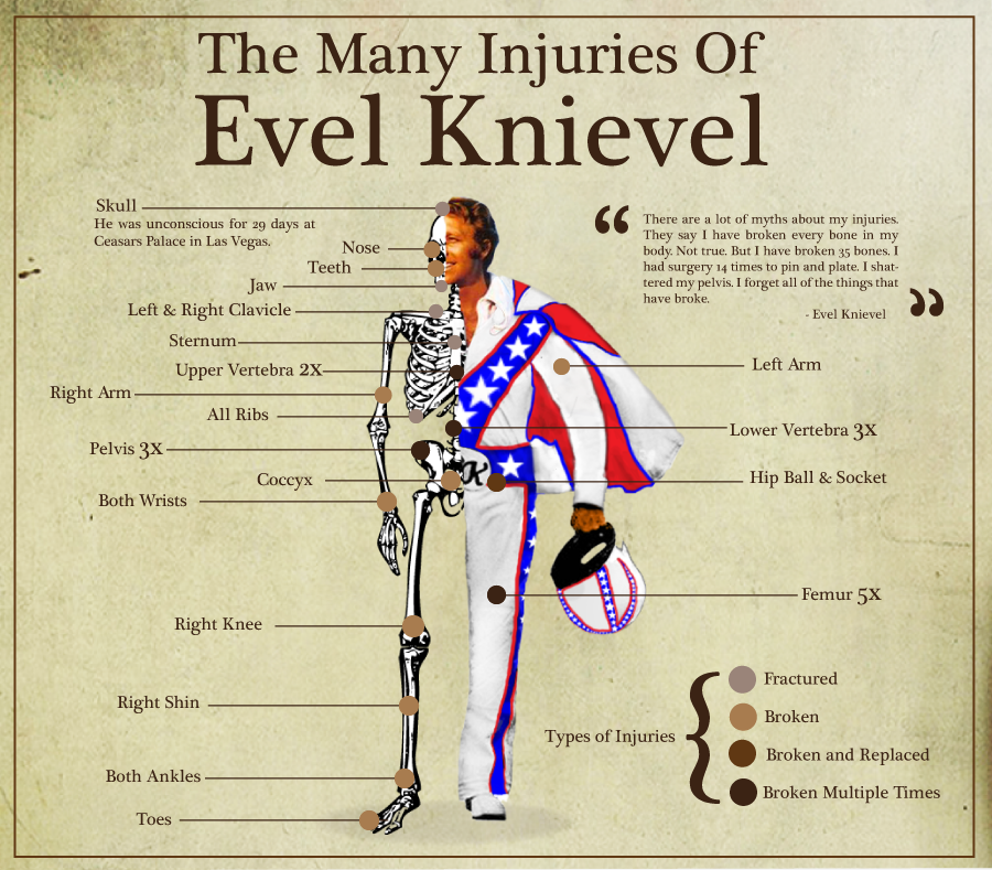 the-many-injuries-of-evel-knievel