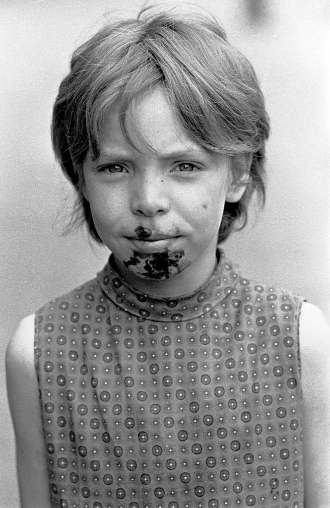 Child with Impetigo caused by foul drainage, Winson Green 1971