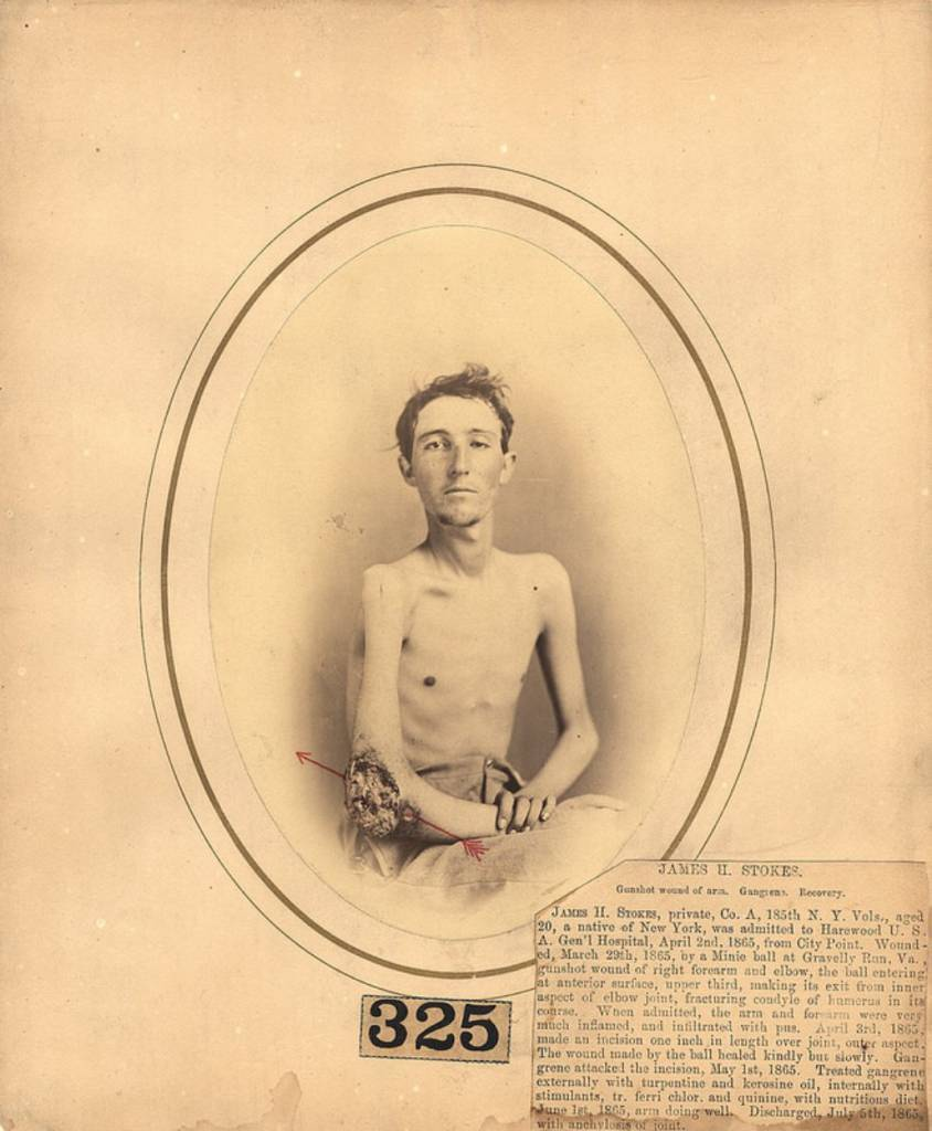 James H stokes, a 20-year-old private, wounded on March 29th, 1865, at Gravelly Run, Virginia