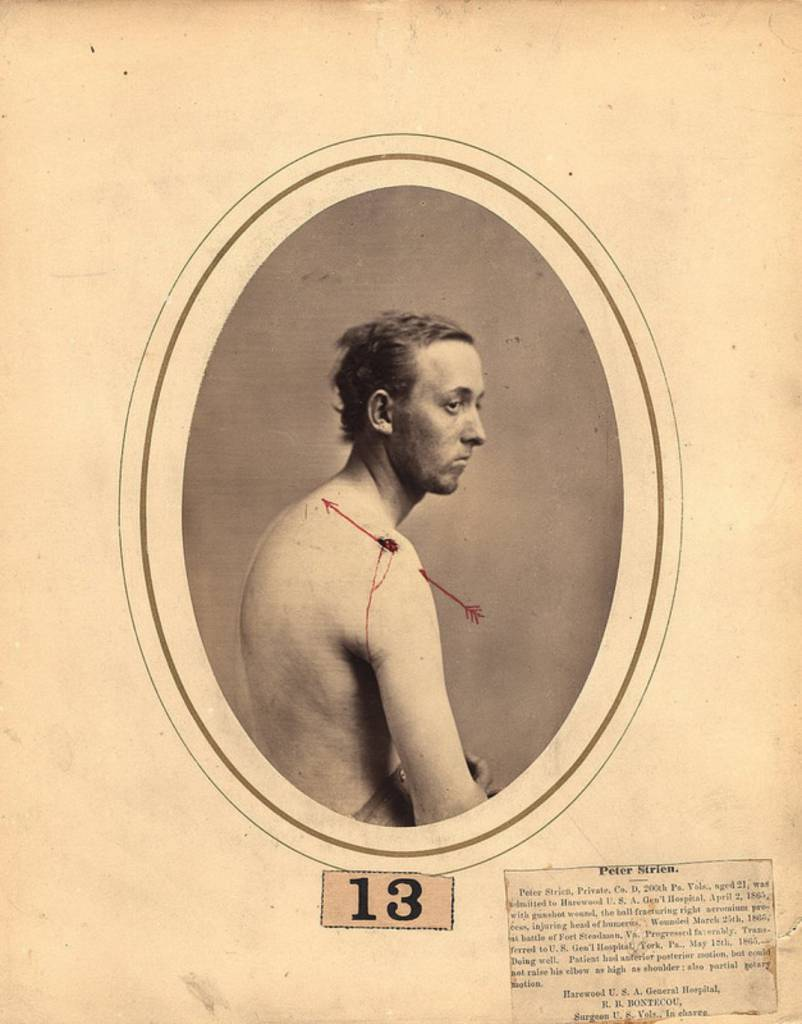 Peter Strien, a 21-year-old private, wounded March 25th, 1865, at the battle of Fort Steadman