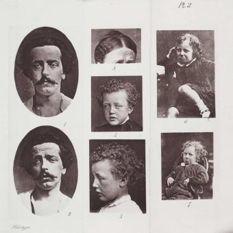 Darwin's Emotional Specimens And Photographing The Mind