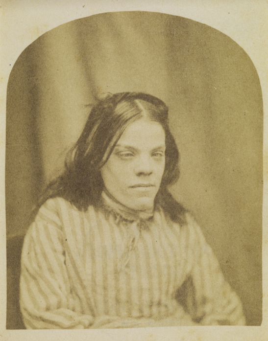 Portrait of a patient from Surrey County Asylum, no. 3