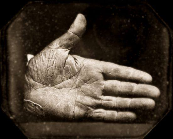 Josiah Johnson Hawes - Branded Hand of Captain Jonathan Walker, Slave Liberator, 1845