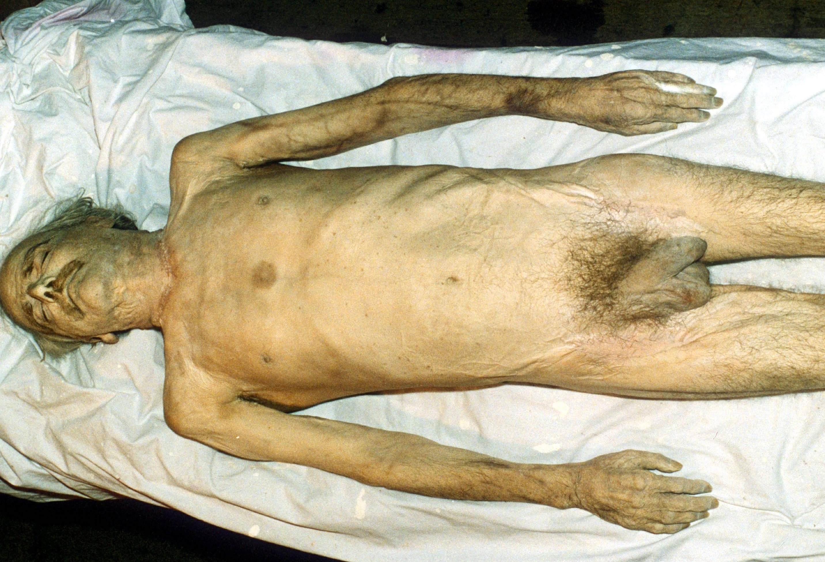 DEAD BODY OF EDWIN MCKENZIE EDWIN MCKENZIE,TRAMP KNOWN AS 'DIOGENES', EMBALMED BY ARTIST ROBERT LENKIEWICZ, PLYMOUTH, DEVON, BRITAIN - 1985