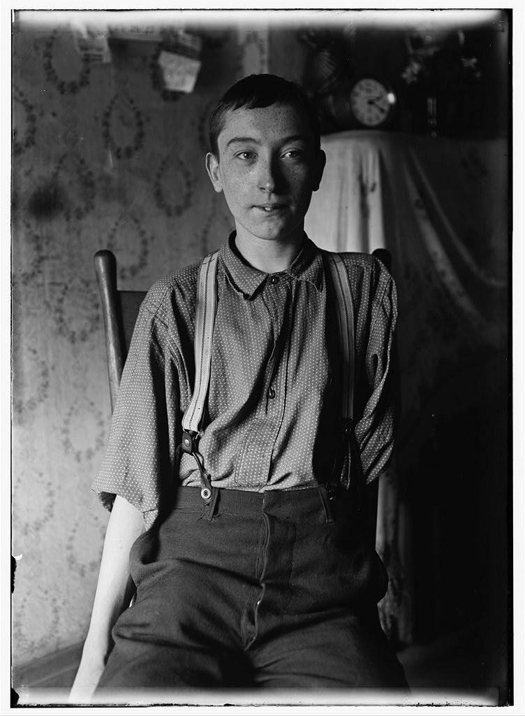 Lewis Hines, Harry McShane - 134 B'way [I,e, Broadway] -Cin. O. - 16 yrs. of age on June 29, 1908. Had his left arm pulled off near shoulder, and right leg broken through kneecap, by being caught on belt of a machine in Spring factory in May 1908. Had been working in factory more than 2 yrs. Was on his feet for first time after the accident, the day this photo was taken. No attention was paid by employers to the boy either at hospital or home according to statement of boy's father. No com- pensation. Location: Cincinnati, Ohio.