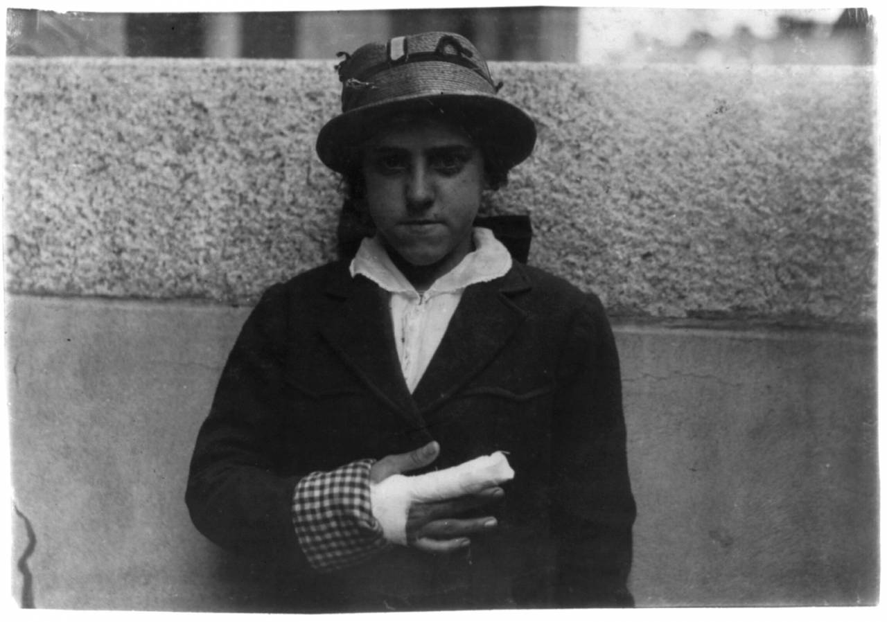 Union Hospital case - Estelle Poiriere, 137 Robeson St., 15 years old. Doffer at Granite No. 1 mill. Laceration of index and middle finger of right hand. Caught in card machine. Injured Dec. 21, 1915 and finger grew stiff and had to have cord cut. Still an outpatient in June and not working yet. Location: Fall River, Massachusetts