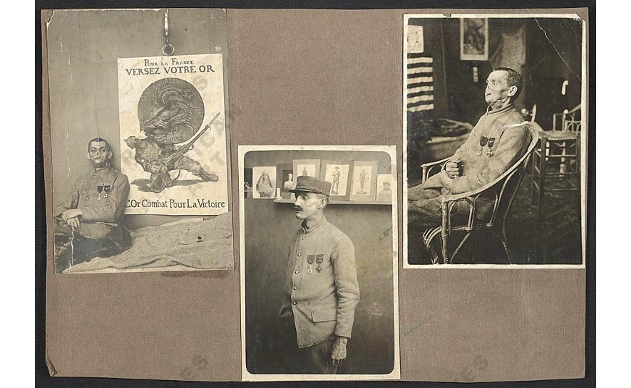 Documentation of a World War I soldier's facial reconstruction, ca. 1918
