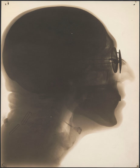 Self-portrait, radiograph, circa 1930s. In this contact print created from X-ray film, you can see the holes created by the film holder. (Dr. Dain L. Tasker)