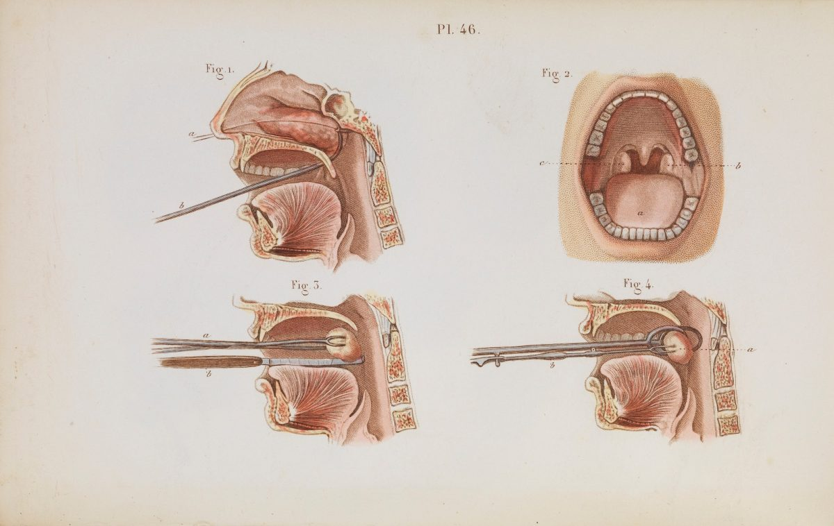 Plate 46, Illustration of the removal of nasal polyps and tonsillectomy.