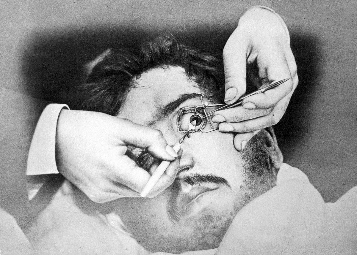 Surgery on the eye for the removal of a cataract.