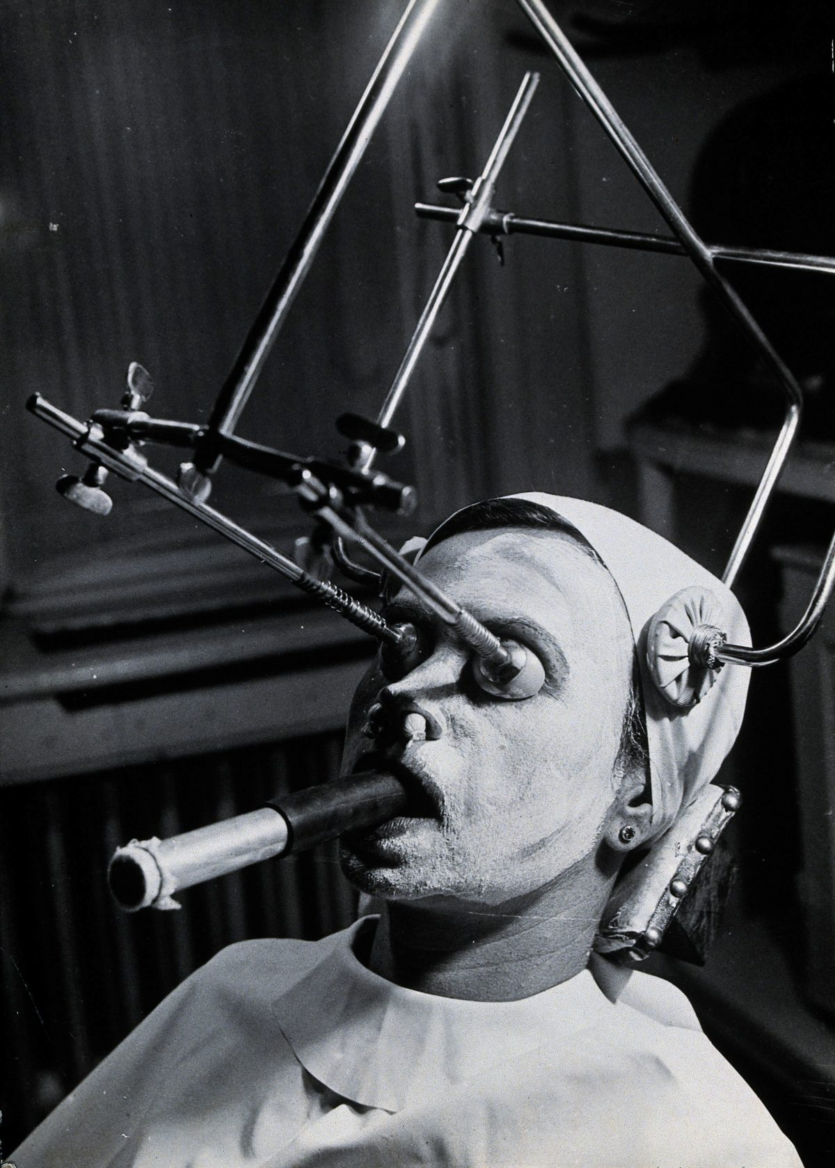 Freckle removal: a woman having a skin peel to remove freckles reclines with a metal contraption positioning her head and a breathing tube in her mouth, Hungary. Photograph by André Just, ca. 1937.