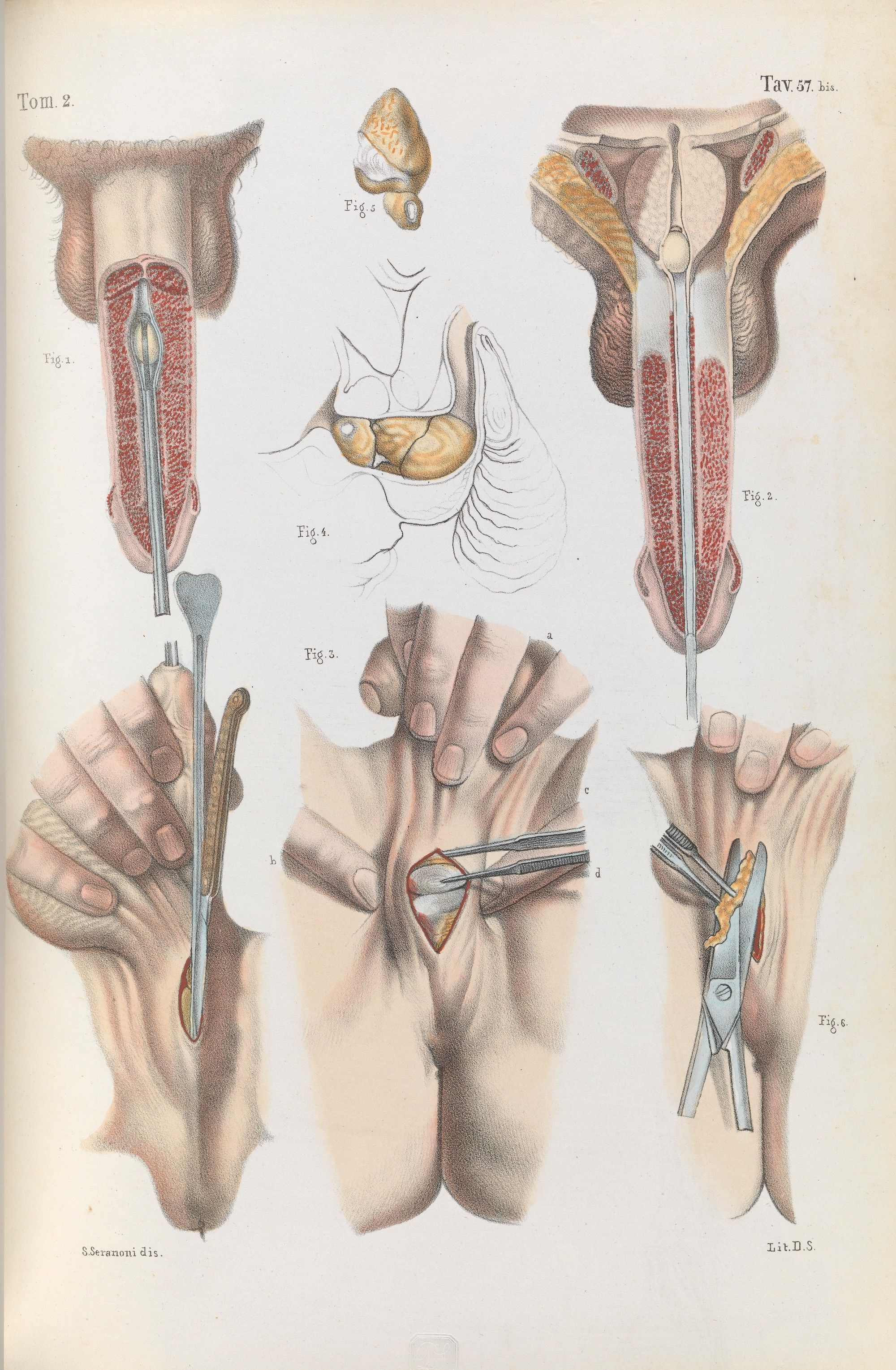 19th Century Illustrations For The Surgical Removal Of Unwanted Parts Of The Human Body Flashbak