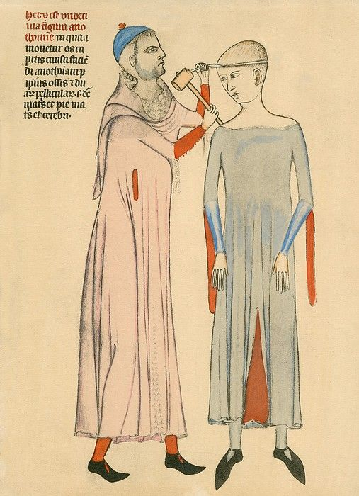 Anathomia, 1345. Medieval doctor cutting open a patient's skull with a hammer and blade.