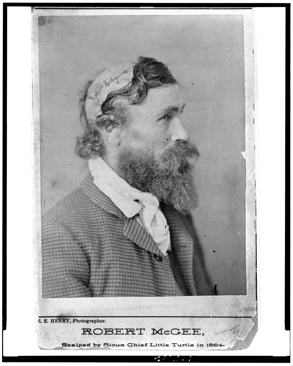 Robert McGee, scalped by Sioux Chief Little Turtle in 1864