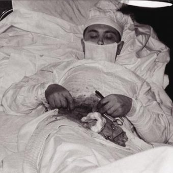 The Soviet Doctor Who Cut Out His Own Appendix