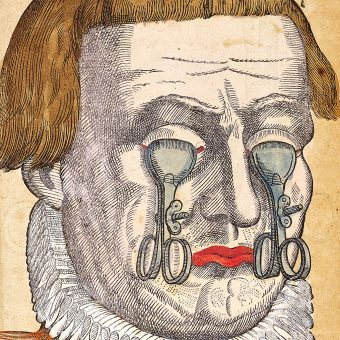 Uncanny Eye Illustrations from Georg Bartisch's Ophthalmodouleia (1583)
