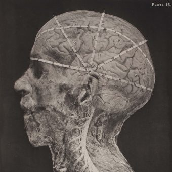 Photographs From A Guide to Operations on the Brain By Alec Fraser – 1890